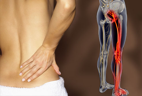 webmd_rm_photo_of_lower_back_pain.jpg